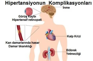 complications-of-hypertension[1]