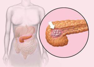 pankreas1[1]