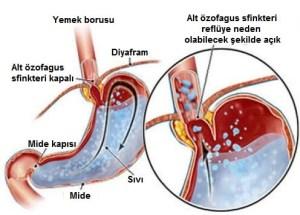 asit-reflüsü-1-1[1]