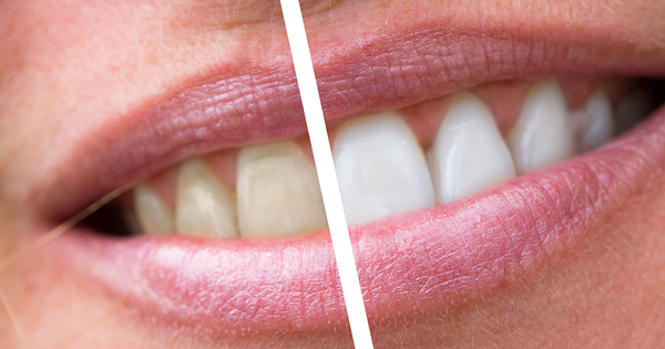 tandblekning[1]