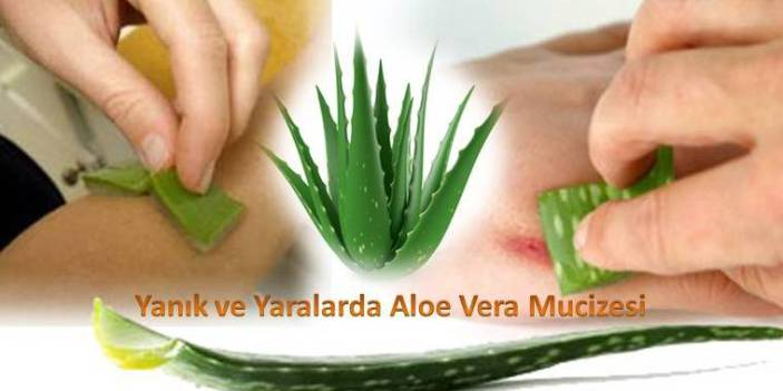 Yanık-ve-Yaralarda-Aloe-Vera-mucizesi[1]