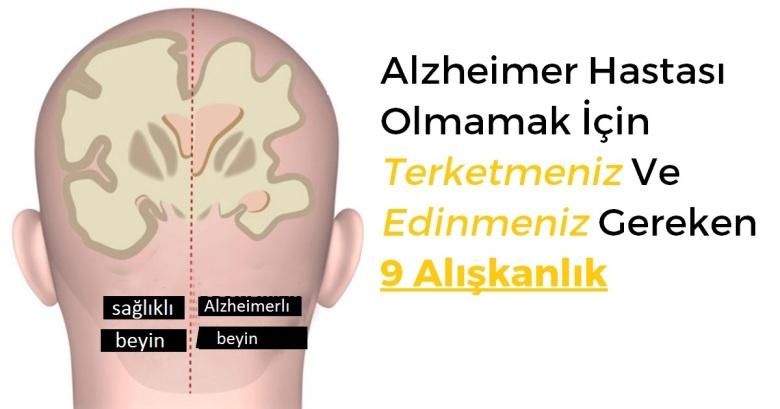 brain[1]