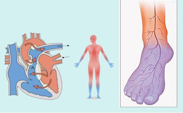 El-ve-Ayaklarınız-Sürekli-Üşüyorsa-Doğal-Tedavi-Yöntemi[1]